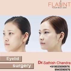 Eyelid Surgery.Please visit us- www.cosmeticsurgerymangalore.com