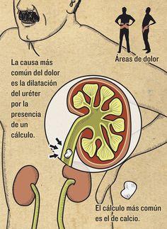 Cólico nefrítico   Magazine   Infografía salud