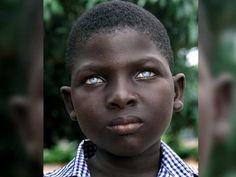 camaragabo net: 12 niños africanos con ojos impresionantes. El #2 puede ver en la oscuridad