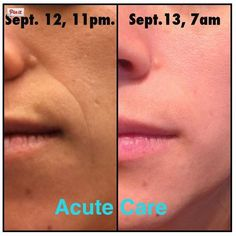 R+F Acute Care - REAL RESULTS.  Less than 12 hours and the wrinkle is nearly GONE!