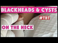 Blackheads and Cysts of the neck! - TBT - YouTube