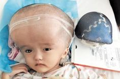 whose head was four times normal size receives printed skull and brain shrinkage surgery 3d Printing News, 3d Printing Industry, 3d Printing Technology, Retail Technology, Drone Technology, Wearable Technology, Mobile Business, Three Year Olds, Sales And Marketing