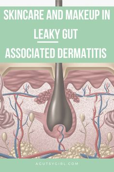 Skincare and Makeup in Leaky Gut Associated Dermatitis - A Gutsy Girl Leaky Gut Diet, Stress Factors, Leaky Gut Syndrome, Girls Bible, Oxidative Stress, Adrenal Fatigue, Natural Healing, Sarah Kay, Skincare