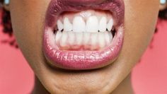 Dentaltown - Blancorexia: the obsession for whiter teeth. Have you ever seen oral pathology caused from an obsession with obtaining whiter teeth?