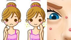 Get Rid of Pimples in This Natural Ways!