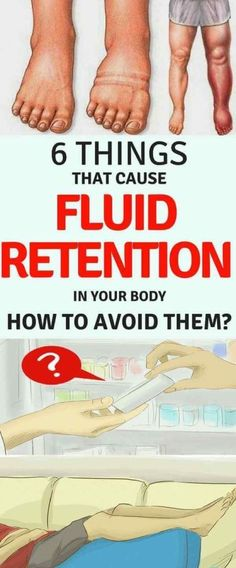 Water retention also called fluid retention or edema is an abnormal accumulation of water in the tissues or cavities of the organism. The retention of fluids in the organism causes … Health Advice, Health And Wellness, Health Fitness, Health Diet, Fitness Tips, Health Exercise, Health Care, Wellness Fitness, Wellness Tips