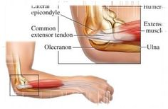 Tendonitis is painful and quite difficult to clear. When you have inner elbow pain it is good to have steps that will help you get relief handy to prevent the pain from lasting weeks. Since the golfer elbow is a medical condition it is good to look into Hand Therapy, Massage Therapy, Physical Therapy, Occupational Therapy, Clinique Chiropratique, Elbow Pain, Back Pain Relief, Sports Medicine, Medical Advice