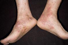 eczema on legs black people - photo #38