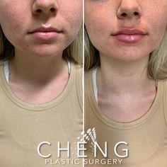 Dermal Fillers, Lip Fillers, Hyaluronic Acid Fillers, Nasolabial Folds, Lip Augmentation, Lip Plumper, Plastic Surgery, Lips, Beautiful