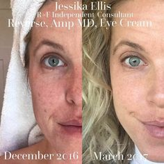 Stop hiding behind makeup and solve your skin concerns for good! Reveal beautiful, clear, healthy skin by switching to Rodan and Fields skin care. Clinically proven to deliver results. Remove dark marks and brighten your complexion to make your skin glow! | REVERSE | | Multi-Function Eye Cream | AMP MD roller system | Best Skin Care Products | #2018goals