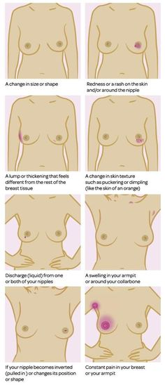 Signs and symptoms of breast cancer can include: a change in size or shape a lump or area that feels thicker than the rest of the breast a change in skin texture such as puckering or dimpling (like the skin of an orange) redness or rash on the skin and/or around the nipple your nipple... Read more »