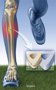 A stress fracture is one of the most frustrating injuries for a runner. The recovery time needed is long and there isn't much you can do to hurry the process along. This article examines the scientific research on the most common causes and risk factors to help you avoid them.