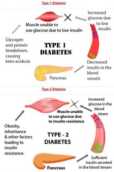 Diabetes mellitus is classed into two different types. Type one diabetes happens when the body does not produce the insulin necessary to metabolize sugars. Type two diabetes is where the body has become resistant to insulin and does not use the hormone. Diabetes Information, Medical Information, Nclex, Hormon Yoga, Nursing School Notes, Nursing Schools, Nursing Tips, Ob Nursing, Endocrine System