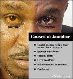 Jaundice Yellow Eyes