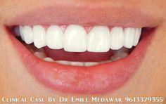 Hollywood Smile Veneers, Dental implant in Lebanon, Style Dental Clinic, Dentist in Beirut Lebanon, 00961 3 379355 Veneers Teeth, Dental Veneers, Teeth Whitening Remedies, Natural Teeth Whitening, Hollywood, Beautiful Teeth, Teeth Shape, Perfect Teeth, Teeth Braces