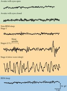 An EEG of an average human during different stages of consciousness.