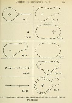 Fig. 43. Method of recording pain. Pain, its origin, conduction, perception and diagnostic significance. 1914.