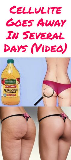 Cellulite Goes Away In Several Days (Video)