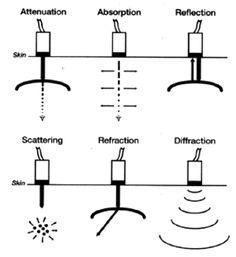 Basic physics of ultrasound and the doppler phenomenon