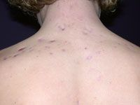 Acne scarring.  Please see www.acnescartreatment.co.uk for acne scar treatment methods.