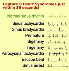 EKG A reason to call so many people Tachy and use it in a medical refrence. Nursing Notes, Nursing Tips, Nursing Cheat Sheet, Nursing Programs, Ecg, Cardiac Nursing, Respiratory Therapy, Medical Assistant, Physician Assistant School