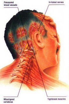 Can Neck and Spine Misalignment Cause Migraines? Find out more about this frequently misdiagnosed type of headache. It's like a migraine but different. It's called a cervicogenic headache or migraine, and it's a real pain! Tooth Pain Relief, Occipital Neuralgia, Natural Remedies For Migraines, Acupressure Treatment, Health And Fitness Magazine, Health Fitness, Fitness Tips, Trigger Point Therapy, Massage