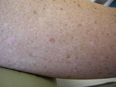 Large Pores On Legs how to get rid of hyperpigmentation here http://meladermpigmentreducingcomplex.org/