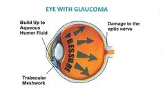 Glaucoma Treatment:- Glaucoma is caused by high pressure in the eyes, which can eventually cause blindness. It affects both eyes but not always to the same extent in each. A Raised pressure inside the eye damages the optic nerve.