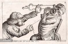 Jaipreet Virdi (@jaivirdi) | Twitter: 18th-century artwork of a dentist holding a string attached to a patient's tooth, while brandishing a hot coal held in a pair of tongs.