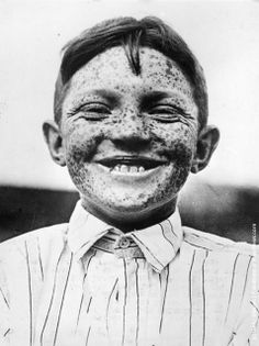 1940: Jack Hexberg, from Portland, the 'Freckle King' of Oregon