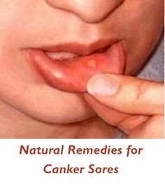 Natural Remedies for Canker Sores (interesting that some toothpastes may cause these things to crop up)