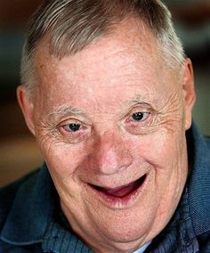 """Obit of the Day: Oldest Living Man with Down Syndrome (83)    When Bert Holbrook was born the average lifespan for a person with Down syndrome was 40. Holbrook didn't pay attention to the statistics. When he turned 80 in 2008, the Guinness Book of World Records officially named him the """"oldest fully authenticated male"""" with Down syndrome. Holbrook, who had lived in a group home for nearly 30 years, had outlived his parents and his sister. (She died earlier in 2012.)"""