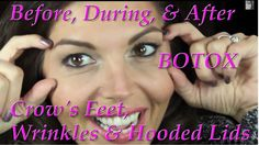 All about Botox for the eyes...See before, the actual procedure, directly after, and then results at 2 weeks. Crow's feet, under eye and forehead wrinkles, plus slight lifting of very hooded lids.