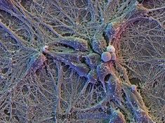 Human Cortical Neurons (Brain Cells) on Glial Cells (flat cells under the neurons)--showing an extensive network of interconnecting dendrites.