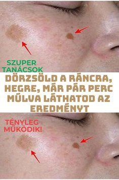 Ráncok, hegek, viszlát! Anti Aging, Massage, Advice, Makeup, Health, Fitness, Tips, Art, Make Up
