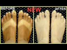 How to remove tan from hands and feets /Sun Tan removal, lighten skin naturally/diy/hindi - YouTube