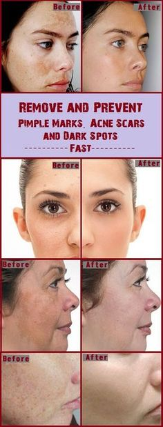 Remove and Prevent Pimple Marks, Acne Scars and Dark Spots Fast