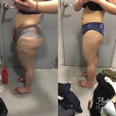 """F/26/5'0"""" [163>147.7lbs = 15.3lbs] 16th February till 6th July 2017 [5months] It's not much but it's progress I am so happy! Thank you for sending this though. Well done!!! To everyone out there YOU CAN ACHIEVE YOUR FITNESS GOALS FASTER --> http://ift.tt/1RAWfxw - Lean Republic bring you the very best and the latest health fitness and wellness products on the market. Get the inside scoop and enhance your lives with state of the art affordable technology. Join our community now - Why join…"""