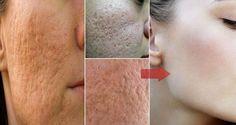 Jediná ingrediencia, ktorá si poradí s pórmi na tvári za okamih a vyčistí vám pokožku! - Báječné zdravie