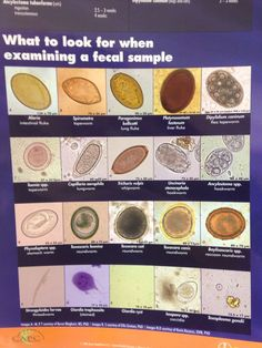 Vet tech students you should know this chart - what to look for when  examining a fecal sample