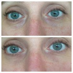Before & After   Nerium Eye Serum Real Results