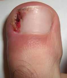 Ingrown toenail treatment can be done at home. Here's how to fix an ingrown toenail using remedies from your own bathroom or kitchen.