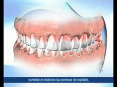 higiene bucal tecnicas.mpg