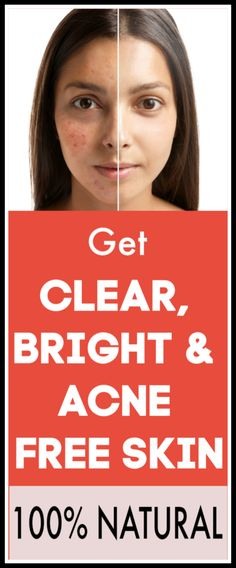 Get Clear, Bright & Acne Free Skin, Works Of The Time acnetips Overnight Acne Remedies, Facial Hair Growth, Overnight Mask, Acne Free, Diy Skin Care, Acne Scars, It Works, The 100, Skincare