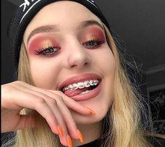 Cute Girls With Braces, Cute Braces Colors, Braces Girls, Braces Smile, Teeth Braces, Zoom Teeth Whitening, Natural Teeth Whitening, Braces Problems, Braces Retainer