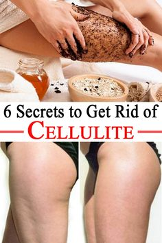 All women detest cellulite, those awful fat deposits that appear on your body, even if you are very skinny. Here's how to get rid of it!