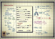 Gasometria arterial Fuente: chuletadeosler.com