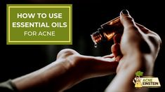 A guide on How to use essential oils for acne. Which carrier oil to choose, how to mix it with the essential oil and which carrier oils you should avoid. Home Remedies For Acne, Acne Remedies, Rosehip Oil, Jojoba Oil, Diy Skin Care, Skin Care Tips, Carrier Oils For Skin, Essential Oils For Skin, Wash Your Face