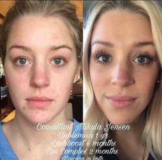 How to get clear and beautiful skin! Rodan Fields skincare results. Get rid of acne and prevent future blemishes. Consistency is key to great skin! results # Before and After # Lash Boost+ Rodan And Fields Regimen, Rodan Fields Skin Care, My Rodan And Fields, Love Your Skin, Good Skin, Skin Care Remedies, How To Get Rid Of Acne, Long Lashes, Skin Care Regimen