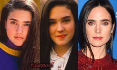 Jennifer Connelly Plastic Surgery, Before and After #jenniferconnelly #boobjob #breastreduction #actress #plasticsurgery #beforeafter #hollywood